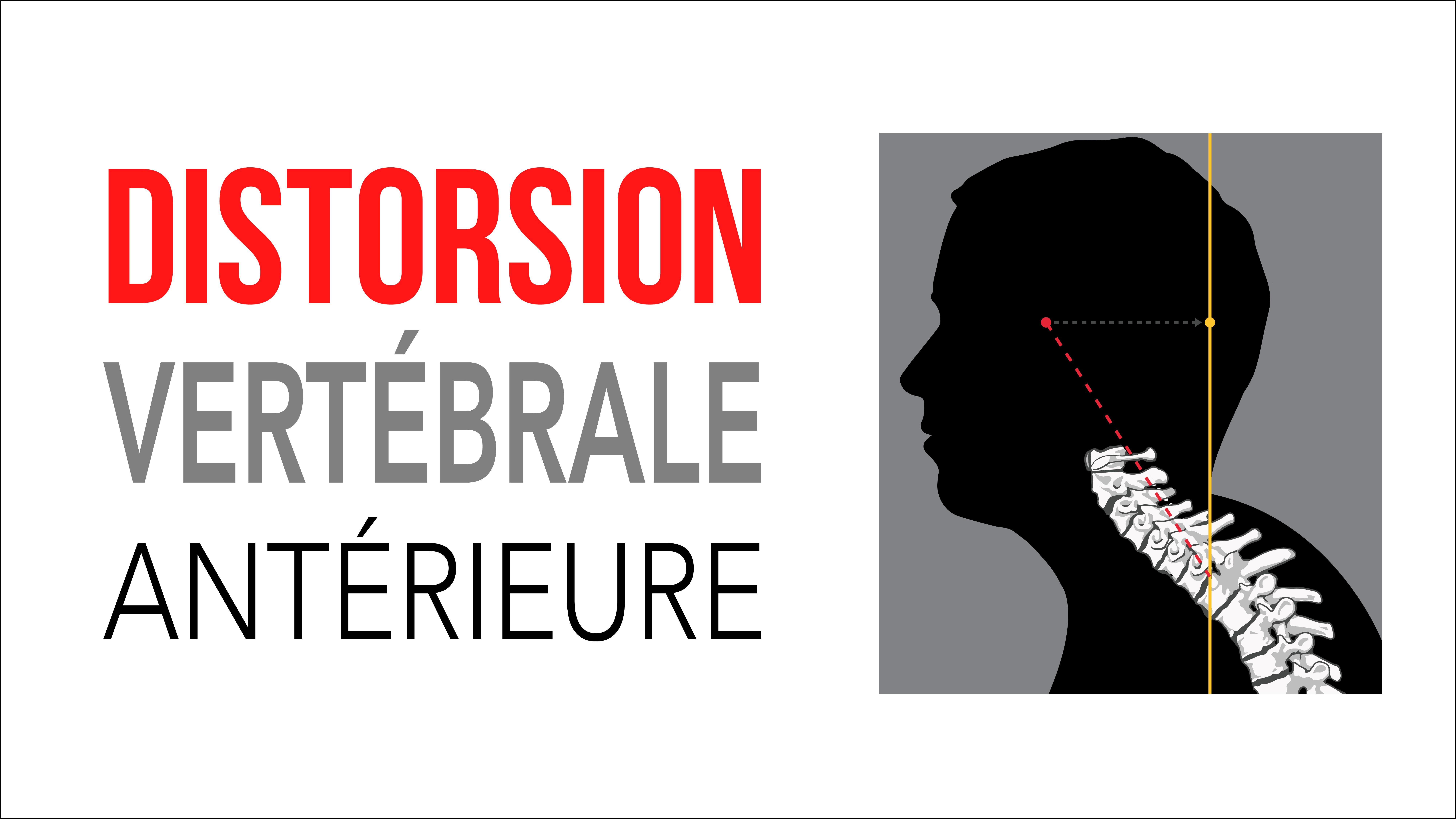 Distorsion vertébrale antérieure - Précision Chiropratique